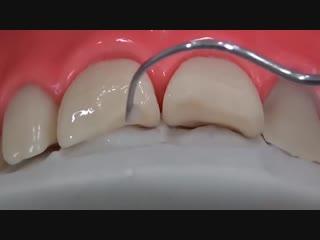 Прямая реставрация переднего зуба за 3 минуты. Восстановление переднего зуба