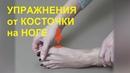 Упражнения от косточки на ноге гимнастика для лечения большого пальца ноги