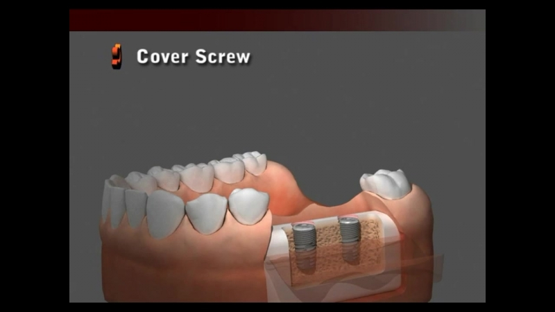 DENTIS Implant Cleanlant Drilling Sequence (Sole Abutment)