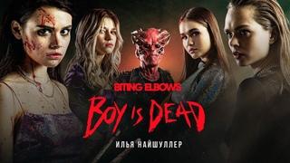 Кошмары музыкантов   Biting Elbows — Boy is dead   18+